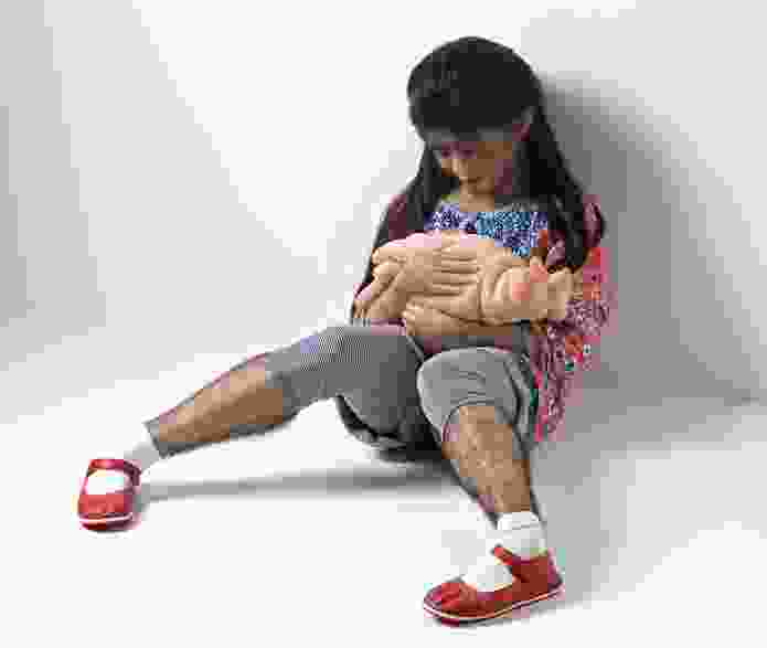 Patricia Piccinini, The Comforter 2010, silicone, fibreglass, steel, fox fur, human hair, clothing, 60 x 80 x 80 cm, Art Gallery of New South Wales, Sydney, purchased 2011.